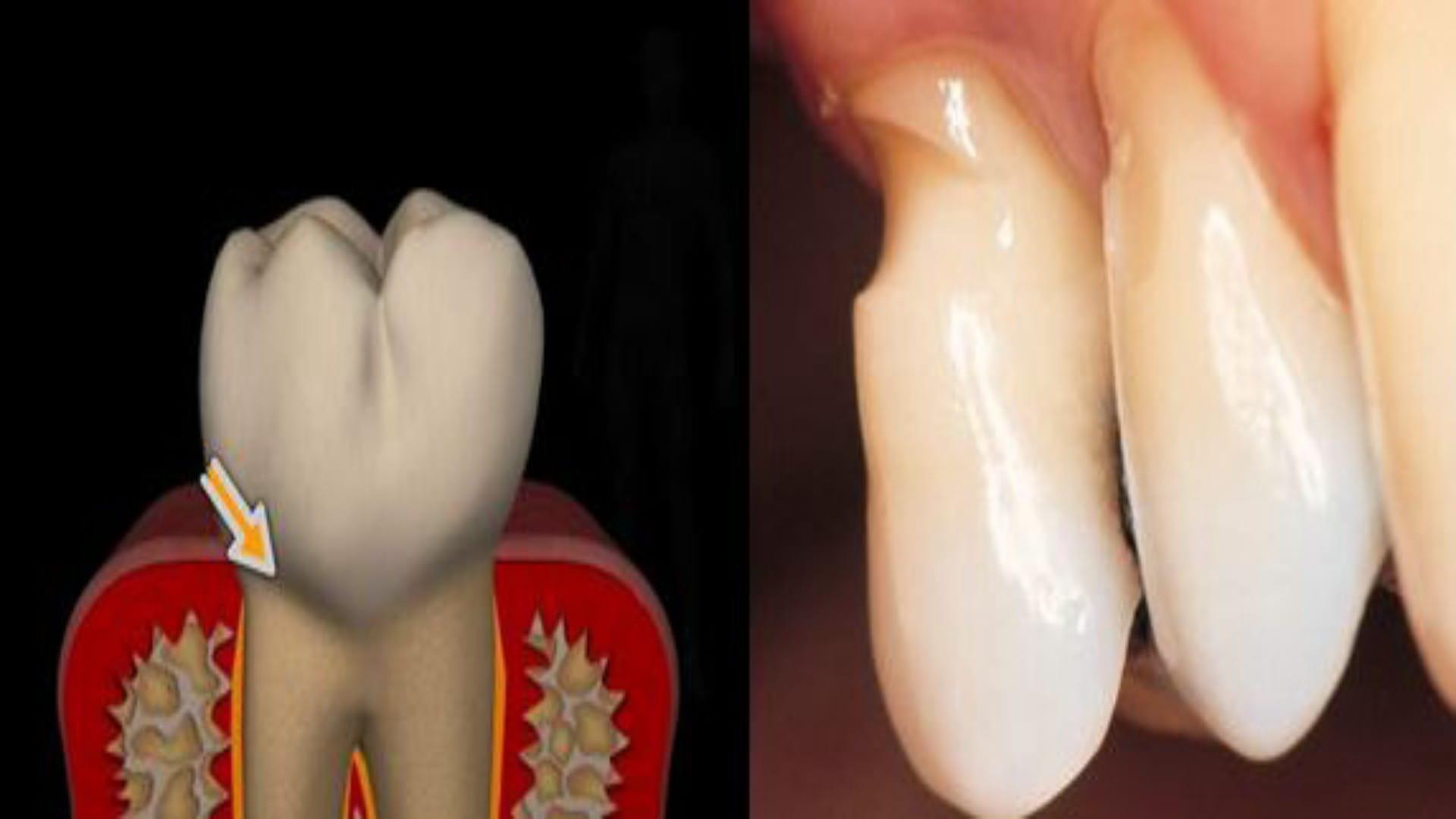 Клиновидный дефект зубов причины и лечение