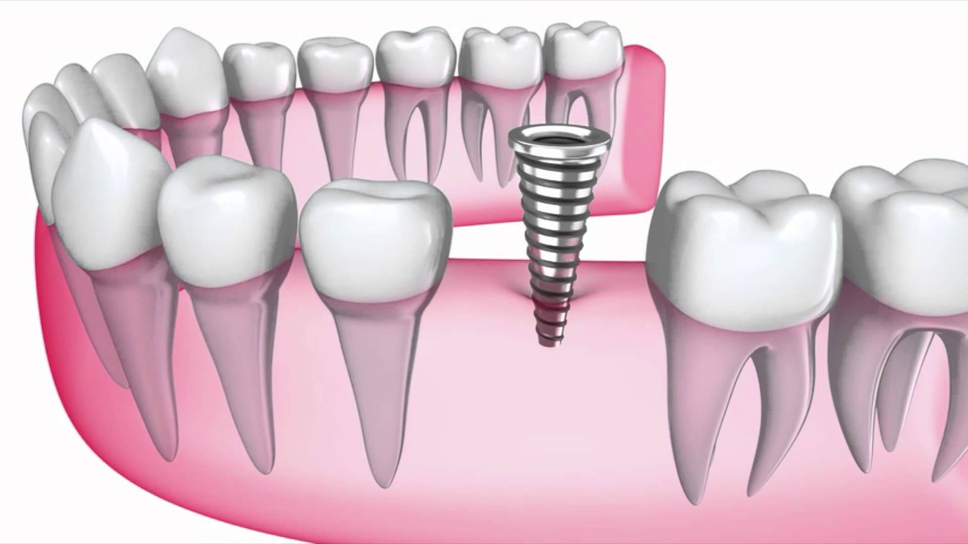 What You Should Do When a Crown Falls Off of Your Tooth Tooth replacement options pictures