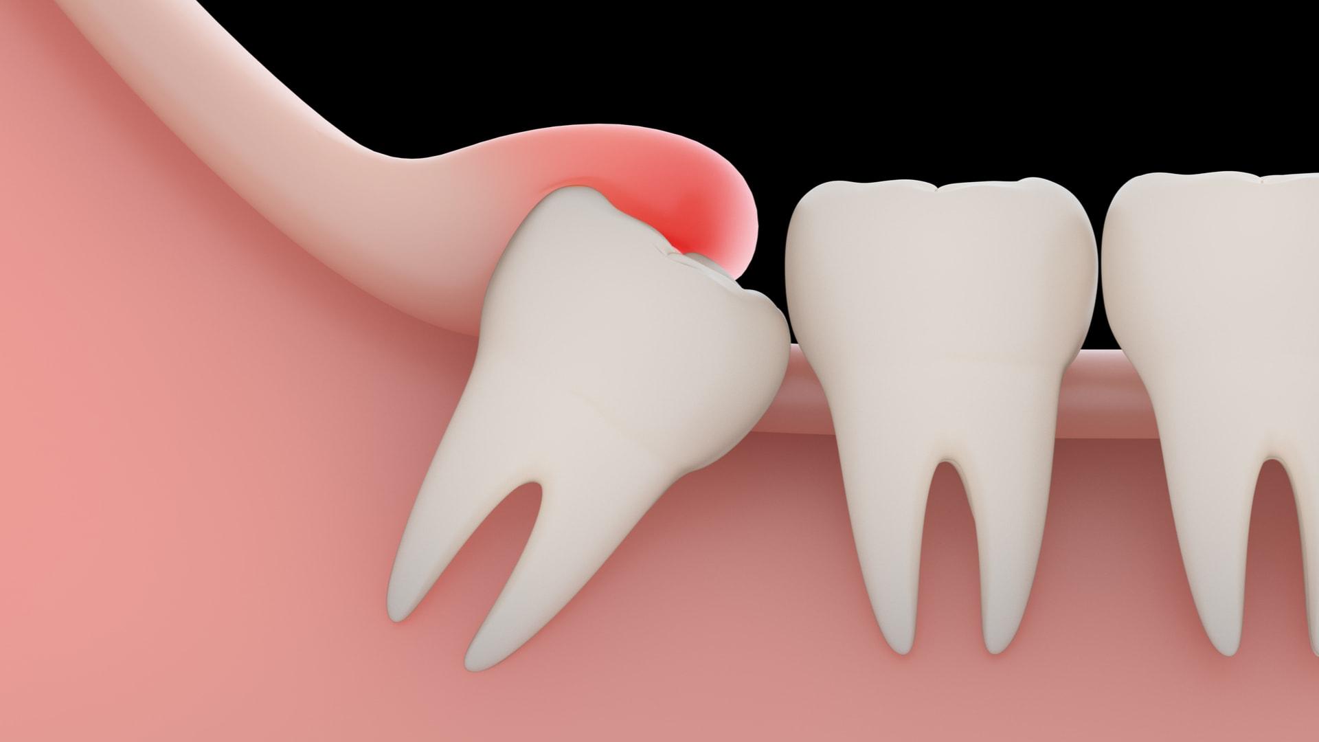 Неправильное прорезывание зубов мудрости