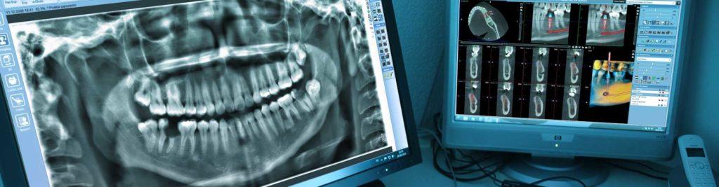 Компьютерная томография акция