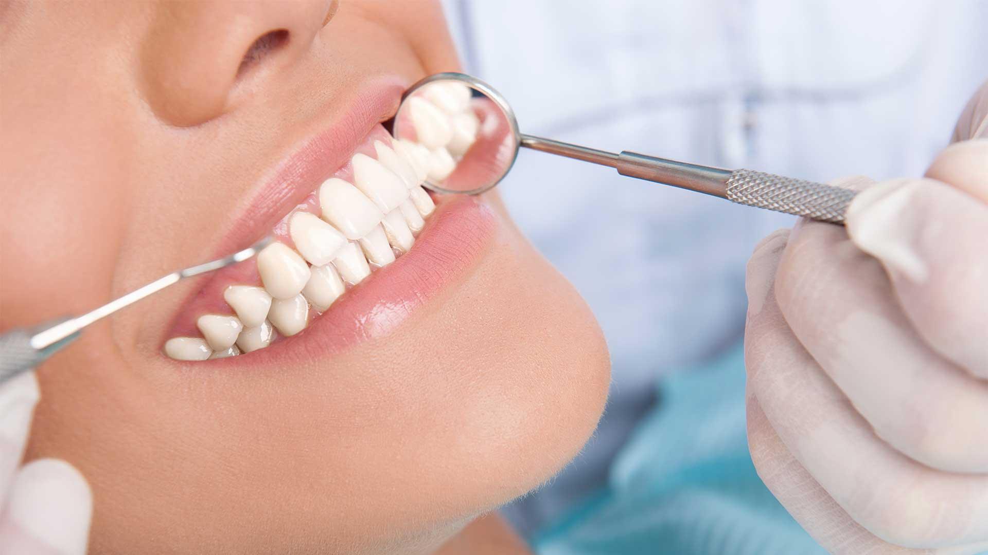 Протезирование зубов при частичном отсутствии